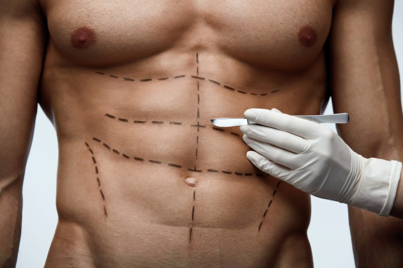liposuction man