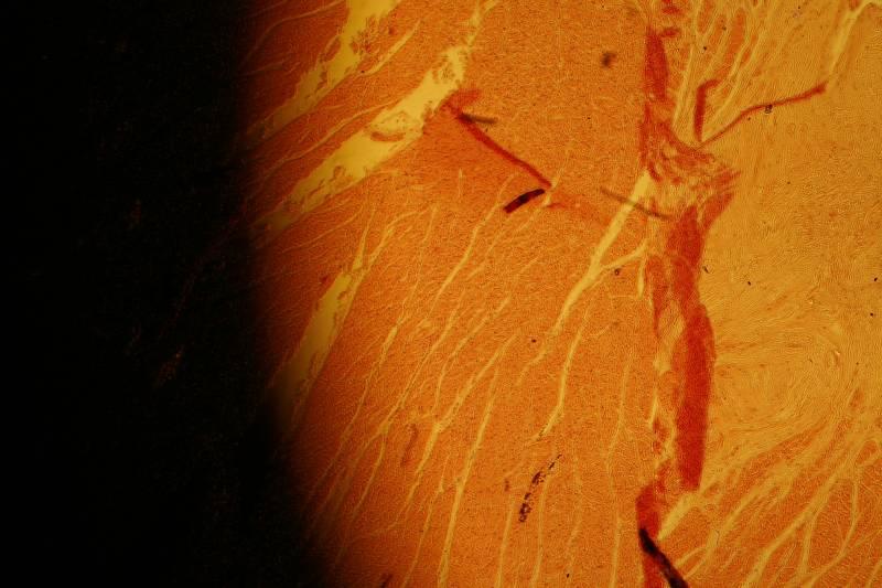 Eleni Bantra Muscle Micrograph