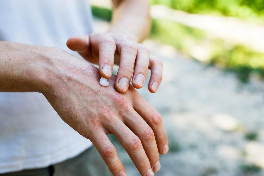Απαλά χέρια και το καλοκαίρι με natural tips